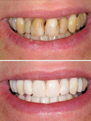 porcelain veneers-vertical