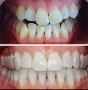Invisalign Kanata - Before and After - Case 1