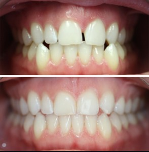 Invisalign Kanata - Before and After - Case 2